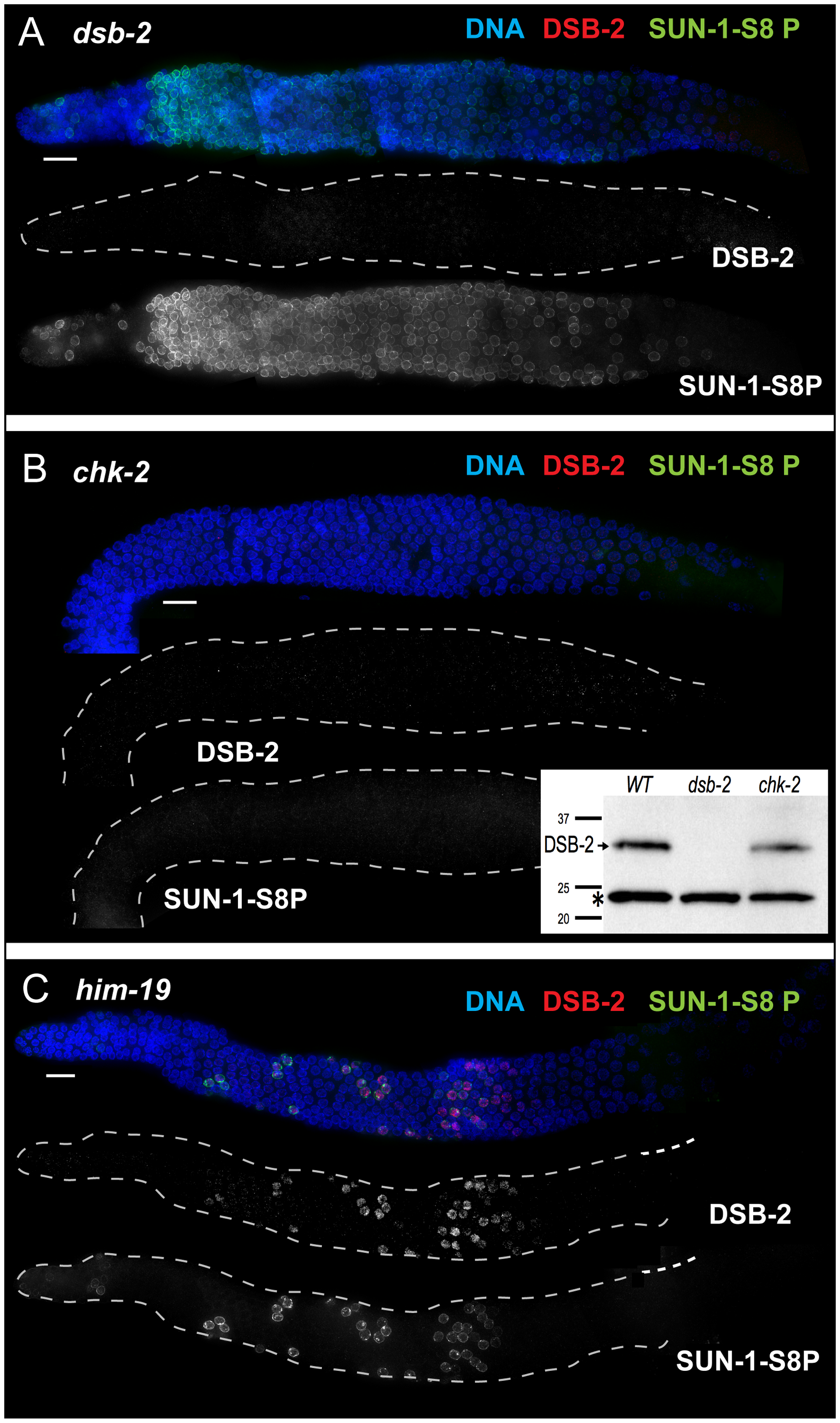 DSB-2 and SUN-1 S8P are coordinately regulated by common upstream regulator CHK-2.