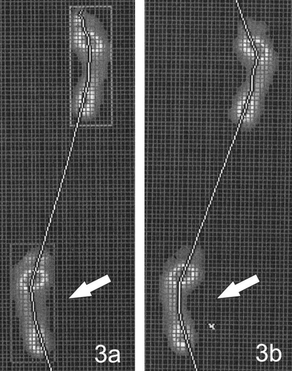"""Záznam z FDM desky: 3a) Propadající se podélná klenba: projasnění otisku na mediální straně je širší na levé noze při vyšetření spontánní chůze, 3b) otisk nohy po instrukci: """"vnímejte zevní hranu chodidla"""" – na mediální straně levé nohy došlo ke zúžení projasnění otisku, tj. ke zlepšení podélné klenby nohy."""
