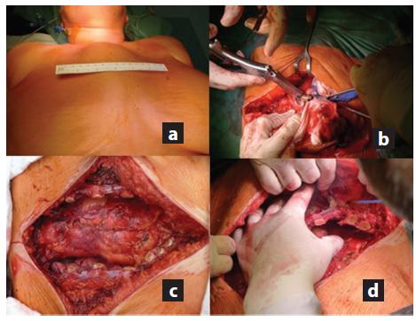 a,b c,d: a) Předoperační snímek zobrazující dobře patrnou ventrálně prominující metastázu sterna; b) Resekce žeber kostotomem; c) Vzniklý ventrální defekt hrudní stěny po resekci sterna; d) Mobilizace pektorálních svalů na okraji defektu. Fig. 3 a,b,c,d: a) Preoperative image showing ventral skin elevation caused by the sternal metastasis; b) Rib resection with costotome; c) Ventral thoracic wall defect after resection of the sternum; d) Pectoral muscle mobilization for closure of the defect.