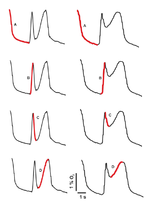 Fig. 8: Pattern of O<sub>2</sub> concentration curves and their phases during breathing trial with NP (left) and AP (right). A—the sensor measures the entire expiratory phase, B—the gas sensor measures concentration of the gas from the inspiratory limb, i.e. gas of the same composition as was at the end phase of the previous inspiration phase, C—gas sensors record gas coming from Y-piece close to snow and early gas from snow cavity for AP, or directly from snow for NP, D—gas concentrations improve because during this late inspiratory phase the gas from rear places in snow enters the sensors.