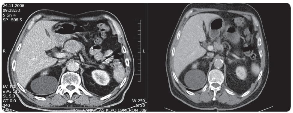 Obr. 5a. Předoperační kontrastní CT pankreatu (portální fáze) zobrazující hyperdenzní nádor hlavy pankreatu. Obr. 5b. Kontrastní CT pankreatu (portální fáze) 3 roky po RFA dokladující regresi nádoru dle RECIST (Response Evaluation Criteria in Solid Tumors).