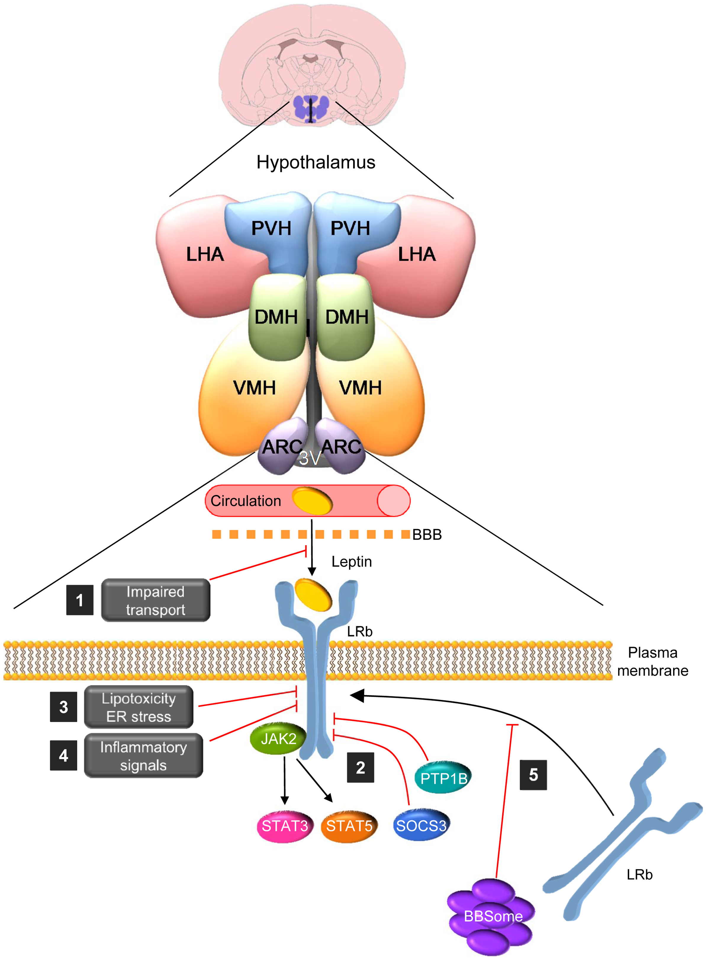 The BBsome regulates hypothalamic leptin resistance.