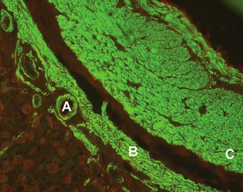 Imunofluorescenční obraz protilátek proti hladkému svalu (substrát – krysí žaludek, A – hladký sval ve stěně cév, B – muscularis musosae, C – muscularis propria). Fig. 1. Immunofluorescent image of smoothmuscle antibodies (substrate – rat stomach, A – smooth muscle in the vascular wall, B – muscularis musosae, C – muscularis propria).