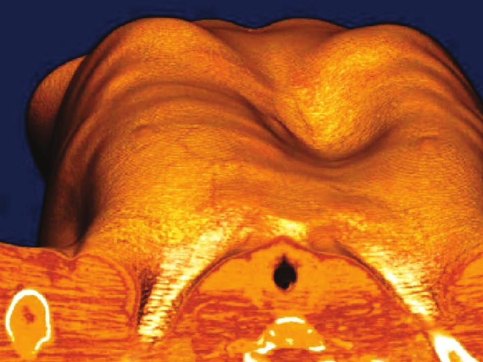 Vyšetření hrudníku počítačovou tomografií před operací: 1a – CT – příčný řez, patrná hluboká deformita s pravostrannou asymetrií; 1b – CT – celotělový pohled Fig. 1: Computed tomography of the chest wall before surgical correction: 1a – axial NECT show marked chest deformity with right-sided asymetry. 1b – Volume-rendered 3D CT – full-body view