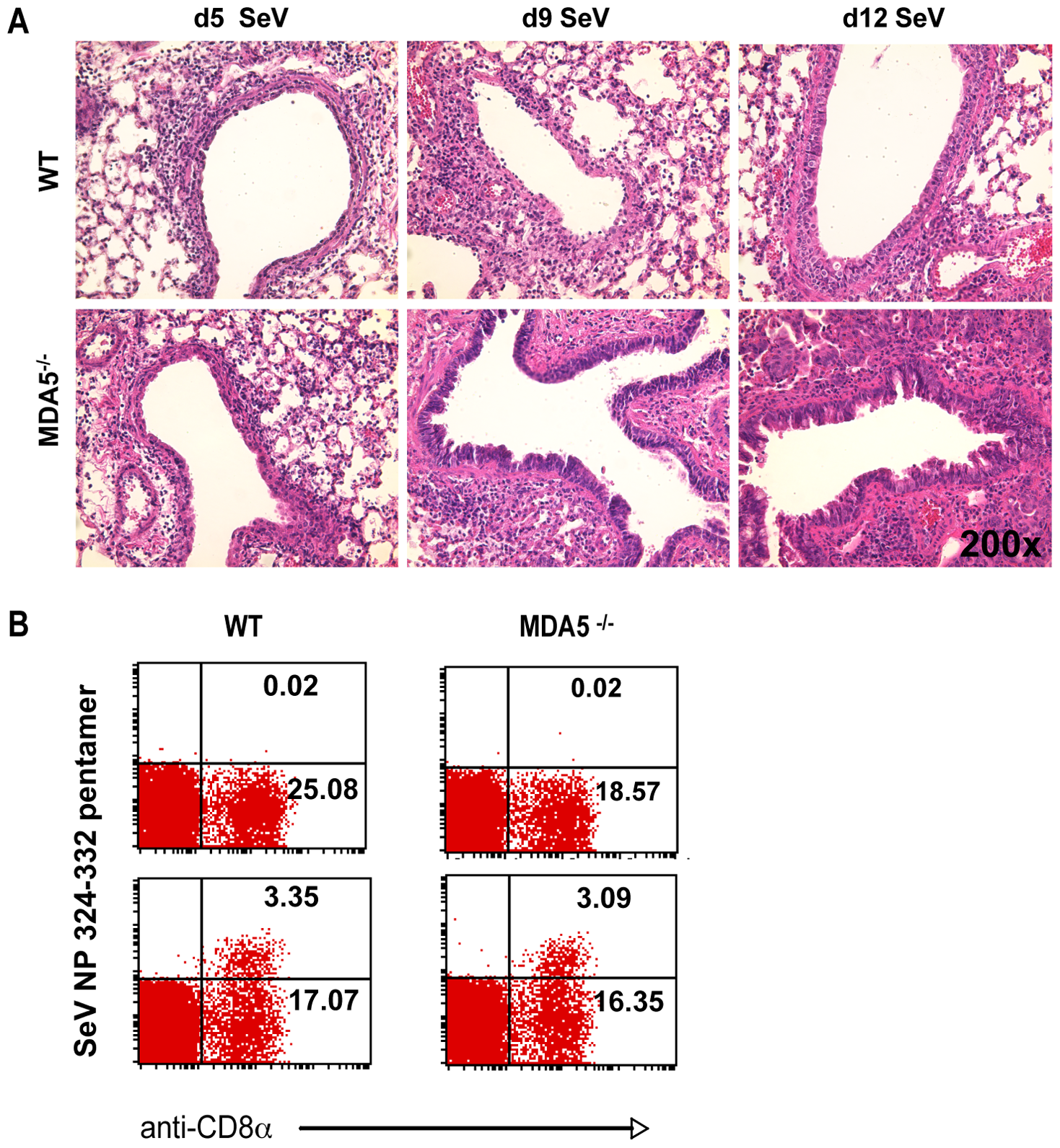 Increased histopathology in MDA5<sup>−/−</sup> mice.