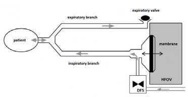 Fig. 1: Ventilator circuit of Sensormedics 3100 with the Demand Flow System. Figure modified from [2].
