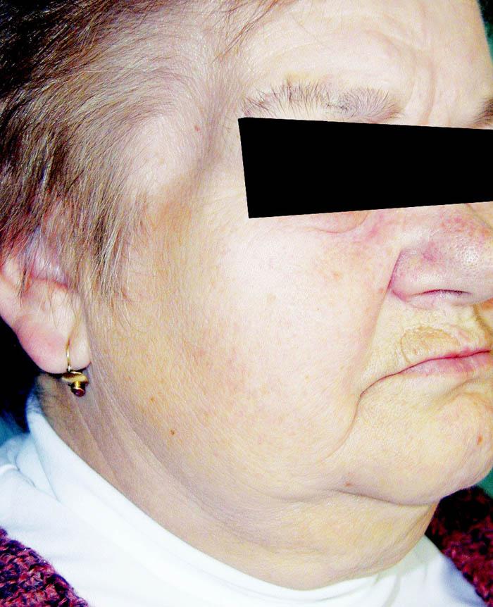 Přijatelný vzhled temporální oblasti po ponechání části svalu a odstranění jařmového oblouku.