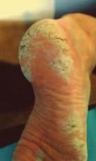 Obr. 1. Tinea pedum: c) hyperkeratotická forma