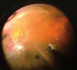 Snímek z peroperačního videa (z pohledu chirurga): retina je ošetřena 360st retinotomií, výměna dekalinu za silikonovou tamponádu, retina kolem papily a v makulopapilárním svazku je foldovaná, makula distopicky rotována dolů