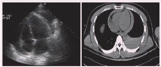 Průkaz perikardiální efuze dle TTE a CTA u penetrujícího srdečního poranění.