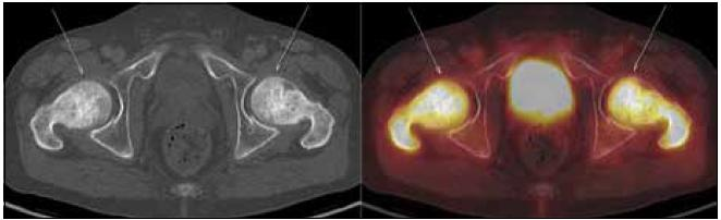 PET-CT zobrazení kyčle a femurů. Oba femury mají nepravidelnou, převážně sklerotickou strukturu spongiózy s osteolytickými okrsky, v těchto místech i jasný hypermetabolizmus glukózy (označeno šipkami). Aktivita v močovém měchýři fyziologická při vylučování radiofarmaka.