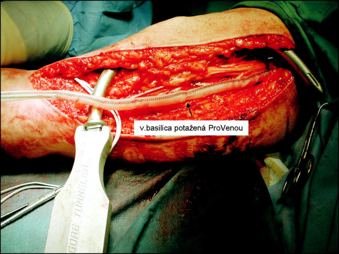 Aplikace zevní protézy na basilickou žílu