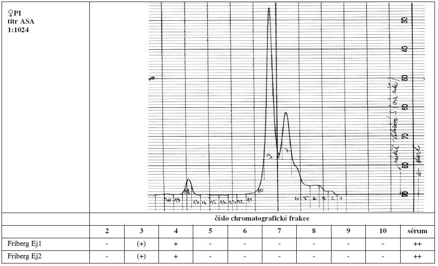 Tab. 4a. Srovnání výsledků Fribergova testu pro jednotlivé chromatografické frakce séra PI. - - negativní, (+) - slabá pozitivita, + - pozitivita, ++ - silná pozitivita