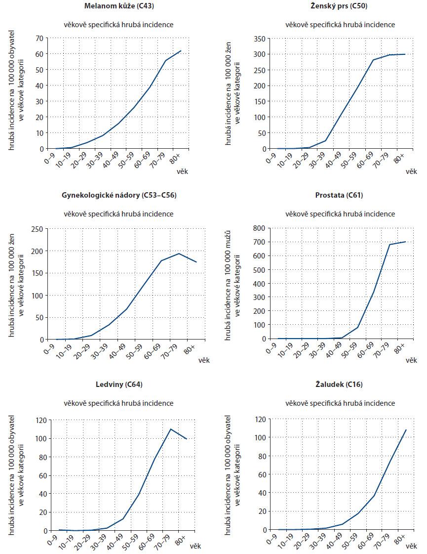 Věkově specifická incidence, 10leté věkové kategorie, období 2004–2008.