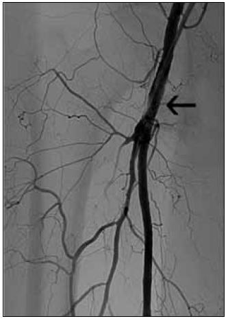 Obr. 6d. Stav po rotační trombektomii se zprůchodněním povrchní i hluboké stehenní tepny (doba rekanalizace 1 min). Šipka označuje počátek uzávěru před rekanalizací.