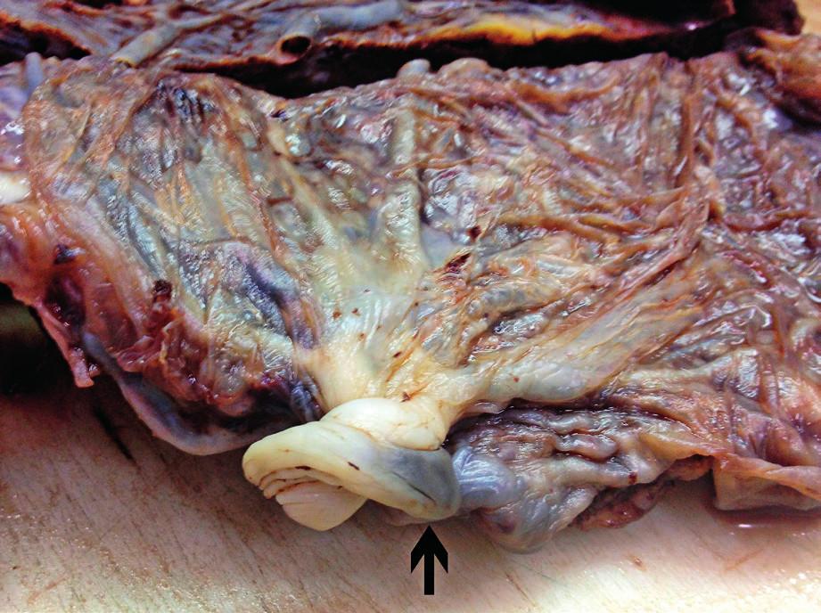 Marginálně upnutý pupečník (šipka)