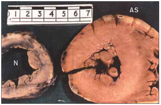 Transverzální řez levou komorou u pacienta s normálním srdcem ve srovnání s pacientem trpícím aortální stenózou. U aortální stenózy je stěna levé komory ztluštělá a dutina je malá.