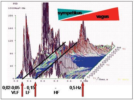 Příkladový (ilustrační) graf představující časofrekvenční analýzu variability srdeční frekvence. <em>Převzatozu prezentace doc. MUDr. P. Stejskala, CSc. (2008). Uvedení se svolením autora.</em>