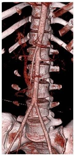 Obr. 1, 2: MDCT obraz poranění jater VI. stupně s krvácením z ruptury arteria hepatica dextra