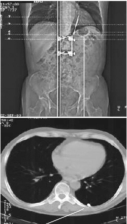CT obraz cizího tělesa v pleurální dutině Fig. 3. A CT view of a foreign body in the pleural cavity
