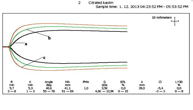 TEG krivky troch vyšetrení a-krivka je vstupné vyšetrenie s hodnotami parametrov na obrázku, R – reakčný čas je v norme (svedčí o iniciačnej fáze zrážania); K parameter a uhol alfa sú patologické a svedčia o spomalenej propagačnej fáze; MA – maximálna amplitúda, t.j. sila koagula, je takisto patologická a svedčí o maximálnej sile koagula (je výsledkom vzájomnej interakcie trombocytov a fibrinogenu v zrážacom procese); b-krivka je vyšetrenie po podaní trombocytov a s hematokritom 0,25; R je v norme; K a uhol alfa sú v norme; a MA je na dolnej hranici normy 51 mm; c-krivka je vyšetrenie po zvýšení hematokritu na 0,32; R, K, alfa sú znovu v norme a MA je 59 mm.