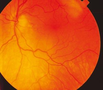 Fundus levého oka s bledší papilou terče zrakového nervu temporálně a lehce ne ostrými hranicemi.