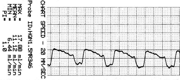 Záznam krevního průtoku v ATA po zaklipování.