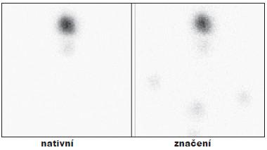 Příklad úspěšné TERJ. Vysvětlivky: nativní - stav po nTTE, drobné okrsky tyreoidální tkáně v oblasti lobus pyramidalis; značení - scintigram stejné oblasti se značkou v místě jugula a nad ním se značením jizvy po nTTE, hladina Tg 1,1 μg/l, (při scintigrafii za 6 měsíců již bez reziduální tkáně).