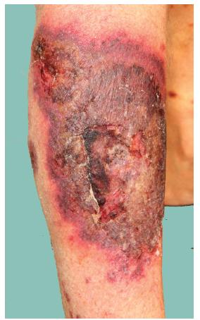 Projev na lýtku charakteru pyoderma gangrenosum