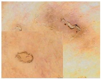Scabies Na větším obrázku je chodbička s parazitem na konci (fenomén rogala nebo tryskového letadla), ve výřezu průsvitné tělo zákožky při použití většího zvětšení.