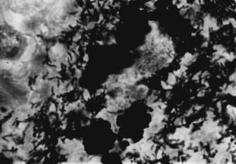 Detailní záběr Grocott+ makrofágů a masy volných extracelulárních bakterií v cerebrální lézi u WD.