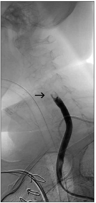 Obr. 5a. Angiografie pacientky s akutní mozkovou příhodou při uzávěru terminálního úseku a. carotis communis vpravo (šipka).