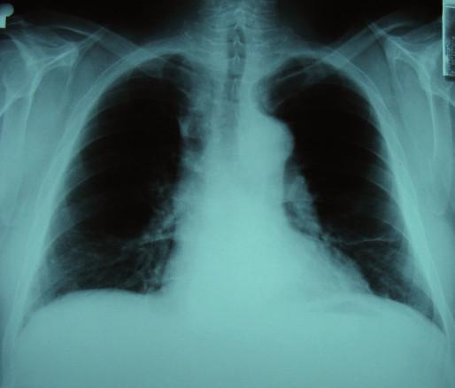 Obr. 1, 2. RTG snímky hrudníku z 1. hospitalizace.
