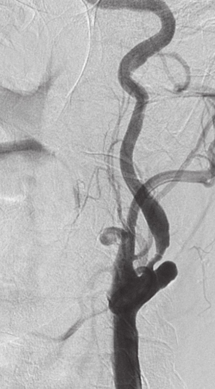 Symptomatická stenóza krkavice dle DSA.