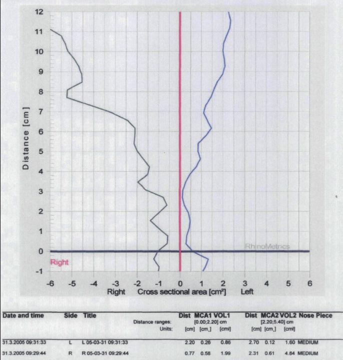 Záznam akustické rinometrie u nemocného s vybočenou nosní přepážkou doleva