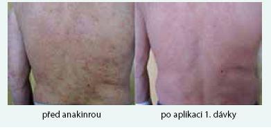 Třetí pacient s kopřivkovými morfami a jejich vymizení po první aplikaci anakinry