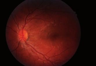 a Desetiletý chlapec – fyziologický nález levého oka