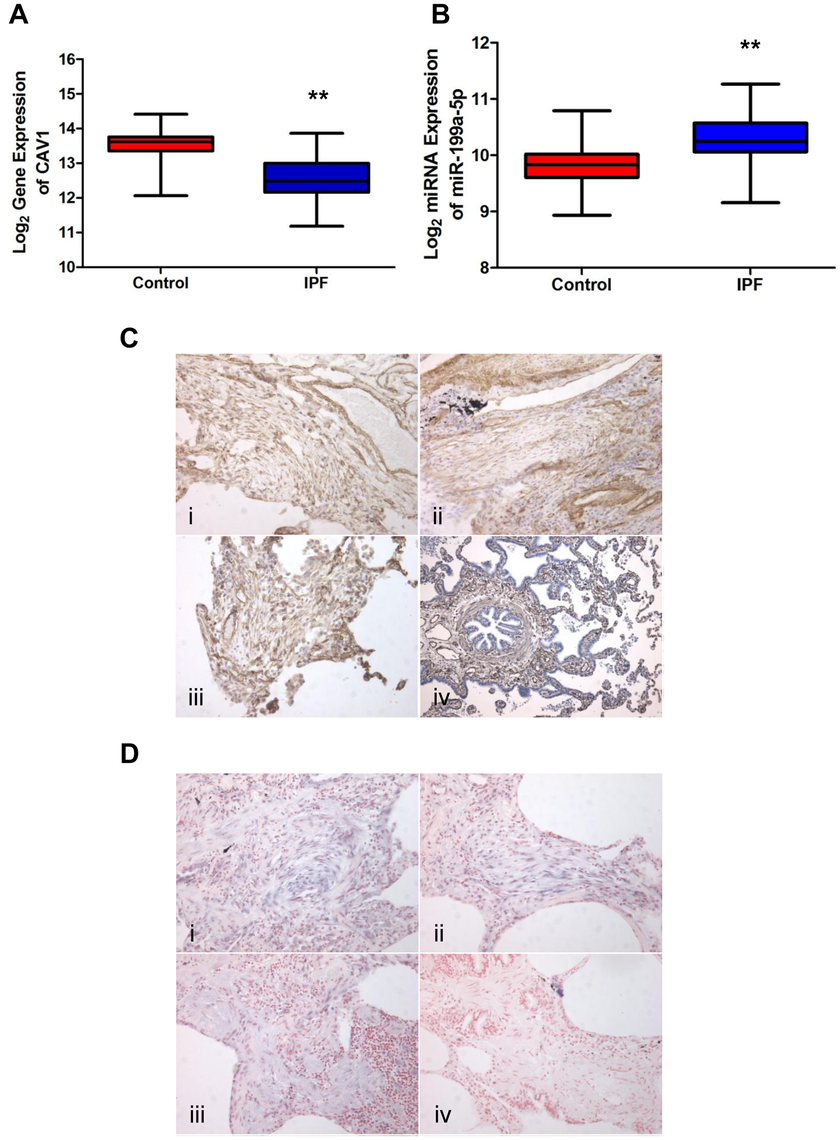 miR-199a-5p and its target CAV1 are dysregulated in IPF.