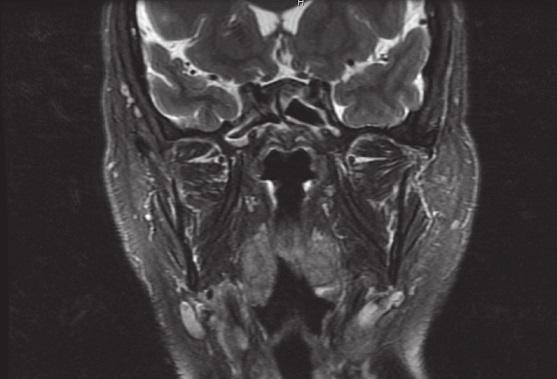 Kontrolní MRI snímek, T2 vážený, bez známek recidivy tumoru.