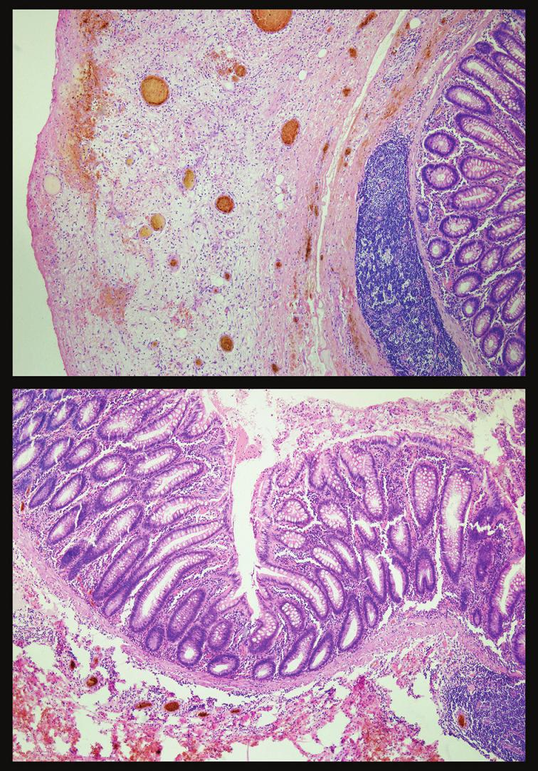 Histologický obraz zapáleného pseudodivertikla