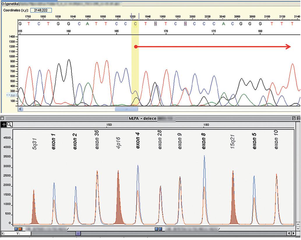 DNA analýza u pacientů 1 a 2.  Obr. 2a) Pacient 1: mutace TSC1 genu – 15. exon: c.1708_1709del, Arg570Glyfs*17 (sekvenace s rev. primerem). Šipka označuje posun sekvence vzniklý v důsledku delece AG.  Obr. 2b) Pacient 2: detekce delece prvních osmi exonů TSC2 genu – výsek fragmentační analýzy, metoda MLPA. Modře – kontrolní DNA, červeně – pacientova DNA; u pacienta je patrna redukce signálu v deletovaných exonech TSC2 genu.