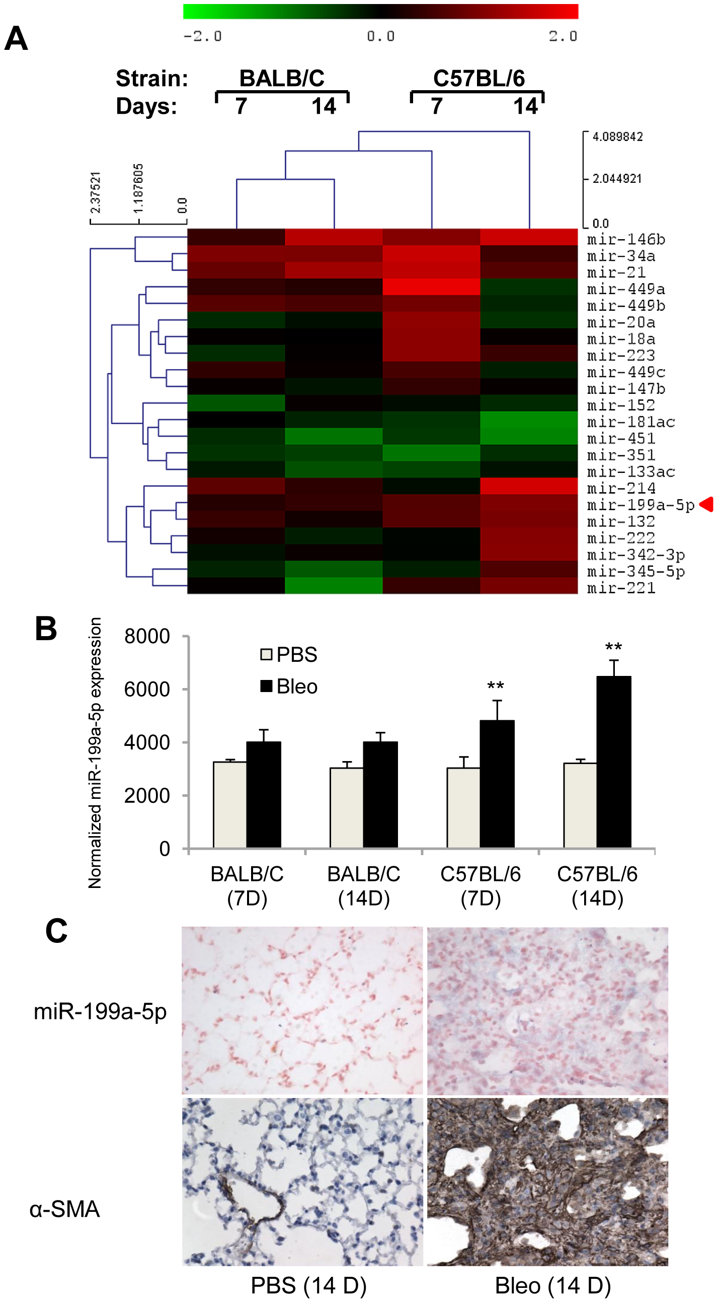 miR-199a-5p expression during bleomycin induced lung fibrosis.