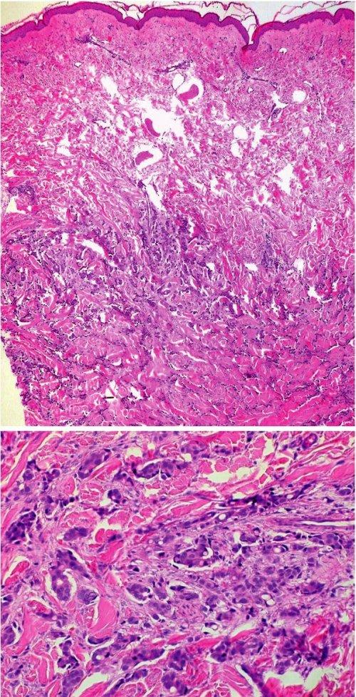 Metastázy karcinomu prsu v koriu (a – přehled, HE, 40x, b – detail, HE, 400x).