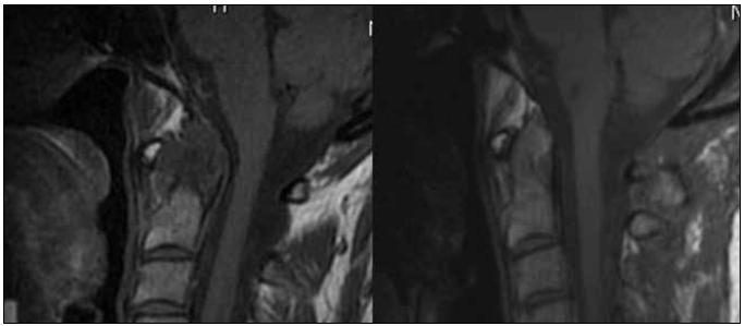 Regrese revmatického panu v T1 váženém MR zobrazení – snímek před výkonem a kontrola rok po operaci.