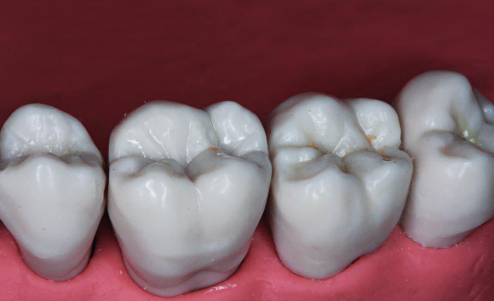 Fantomové zuby KaVo