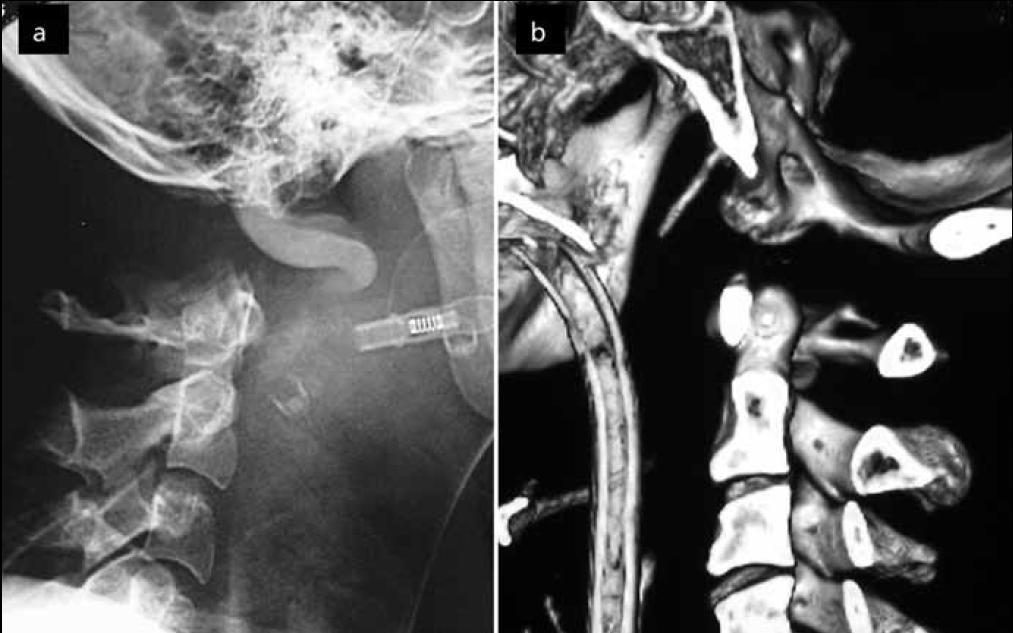 a) AOD I. typu dle Traynelise – přední dislokace. Snímek pořízen v rámci diagnostiky smrti mozku, tudíž je patrná kontrastní náplň v cévách. Obr. 3b) AOD II. typu dle Traynelise – longitudinální distrakce na sagitální CT rekonstrukci.