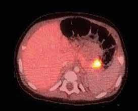 <sup>18</sup>F-DOPA PET/CT pankreatu u 5měsíčního děvčátka s vrozeným hyperinzulinizmem a heterozygotní mutací v genu ABCC8, který kóduje SUR1 podjednotku draslíkového kanálu B-buňky