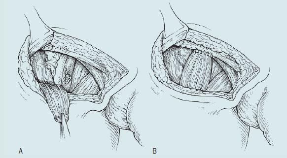 Ošetření defektu a krytí femorálních cév.
