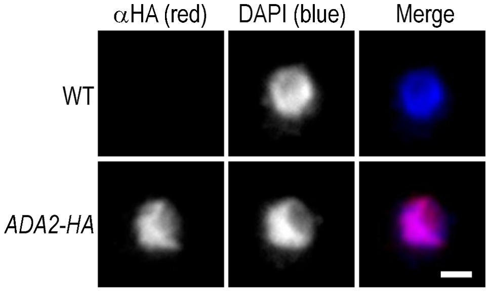 Cryptococcal Ada2 is localized to the nucleus.