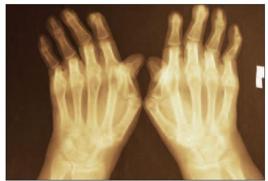 Rentgenologický obraz deformít u rovnakej pacientky s SLE – bez erozívnych zmien.